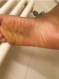 My Feet - album 9