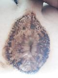 Poopy hole